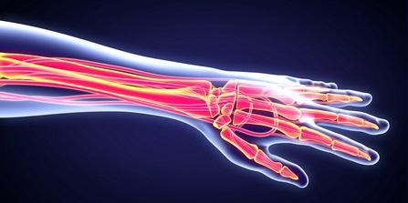 come curare l'osteoporosi