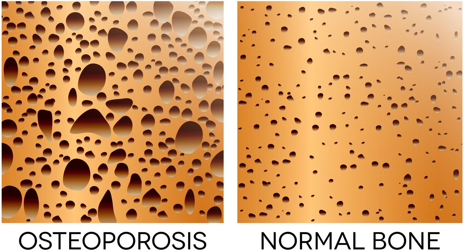 bonolive, osteoporosi, ossa, osteopeni